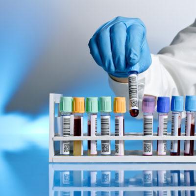 Tests de microbiologie